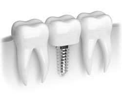 implants-bw